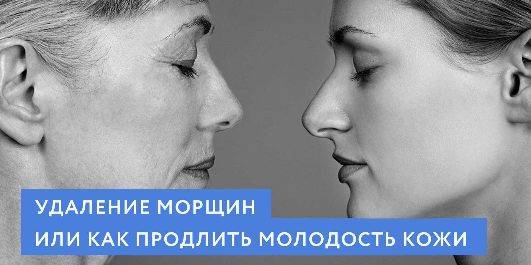 Удаление морщин, или как продлить молодость кожи